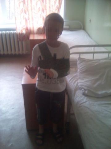 Ребёнок сломал руку в Бердске на «несуществующем турнике»